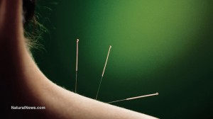 Acupuncture-Shoulder-Needles